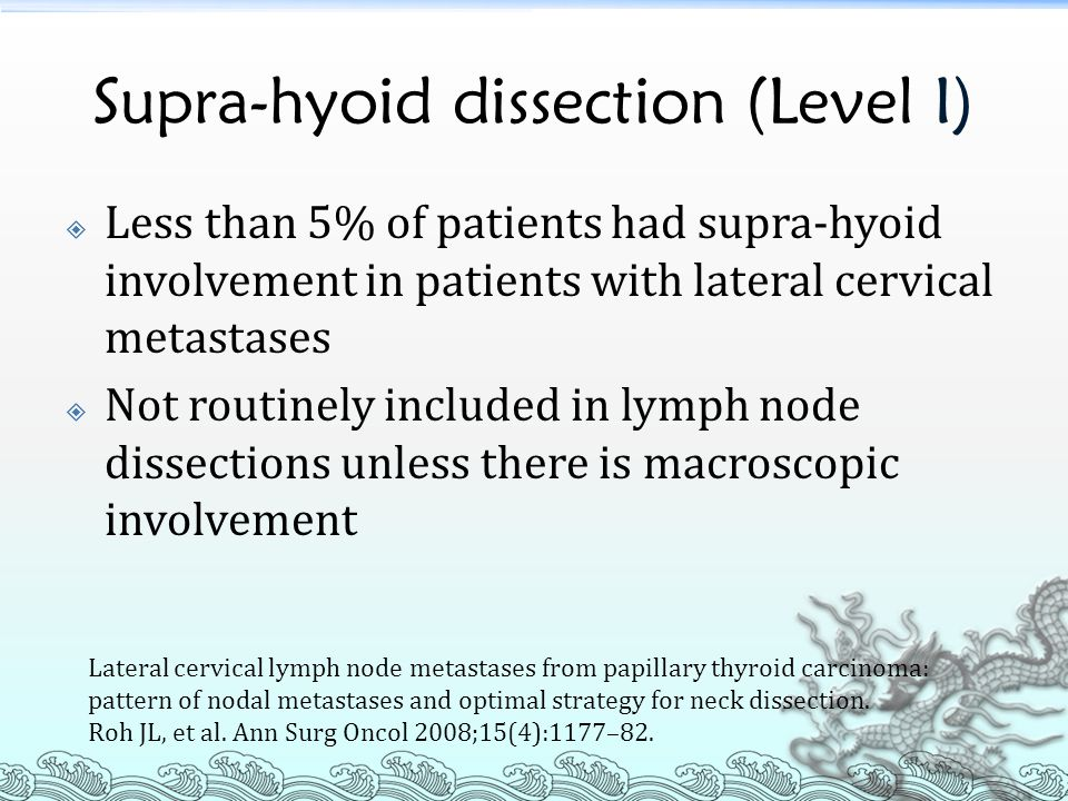 Supra-hyoid dissection (Level I)