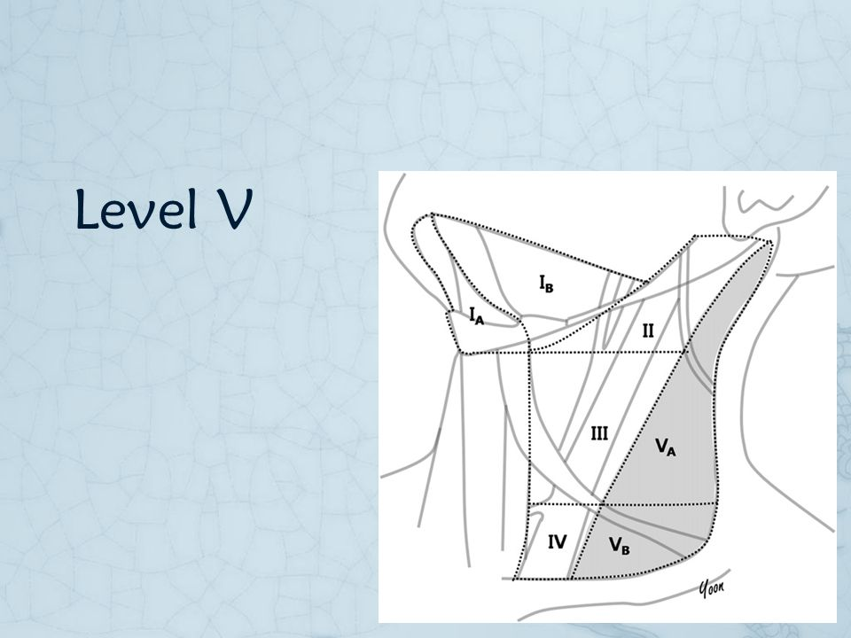 Level V Level V is also a controversial area on the extent of dissection and it involve a larger area which the CN11 cross its upper aspect.