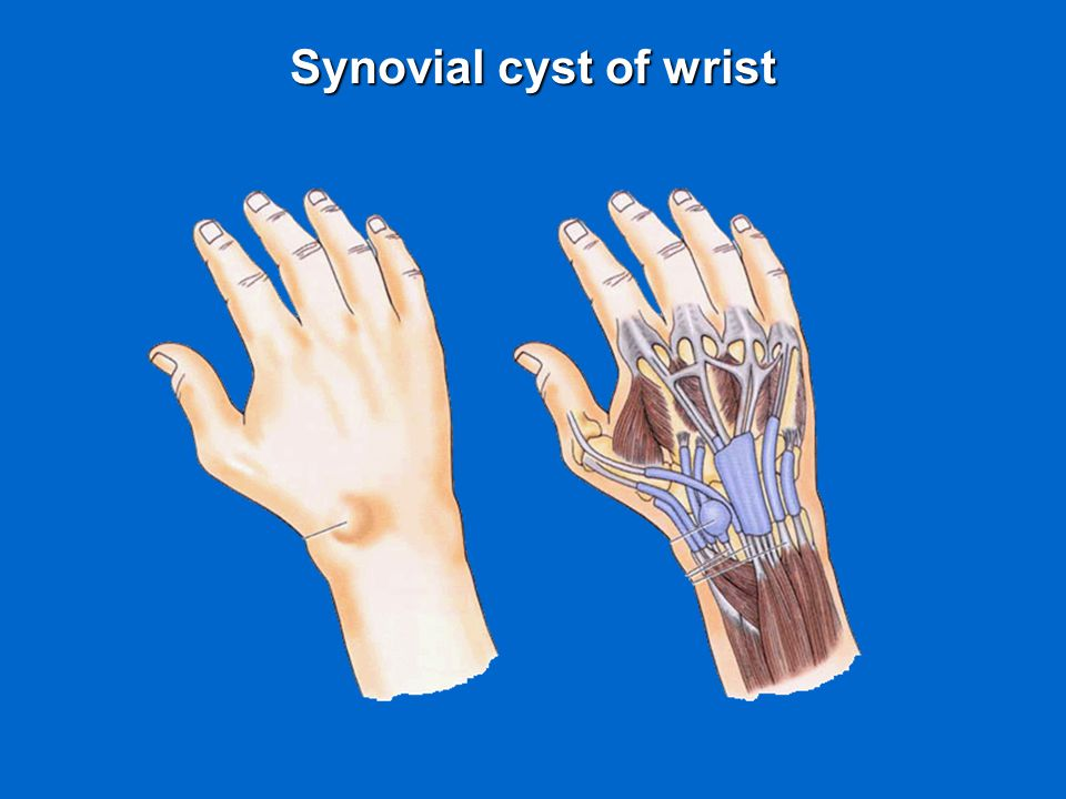 Synovial cyst of wrist