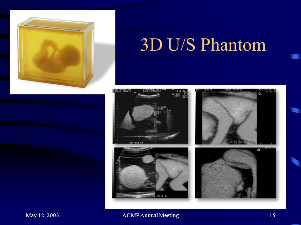 3D U/S Phantom May 12, 2003 ACMP Annual Meeting