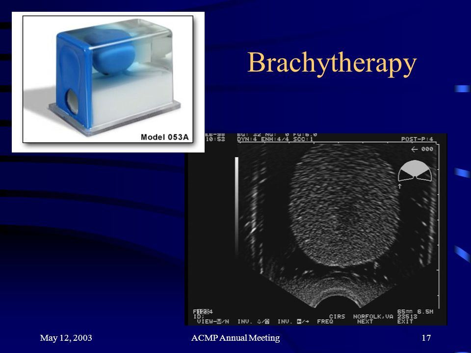 Brachytherapy May 12, 2003 ACMP Annual Meeting