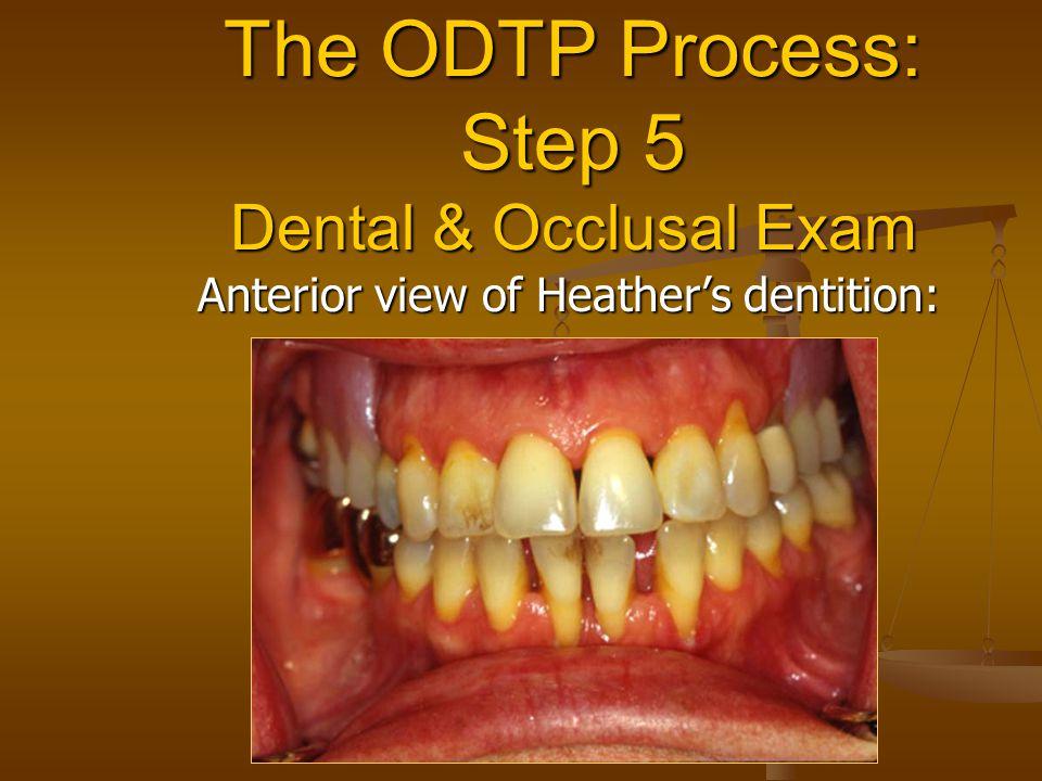 The ODTP Process: Step 5 Dental & Occlusal Exam