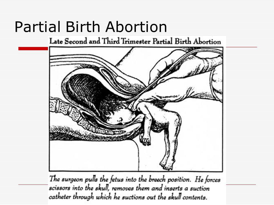 Partial Birth Abortion