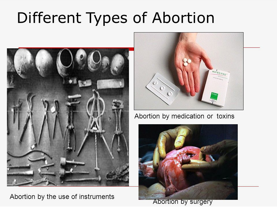 Different Types of Abortion