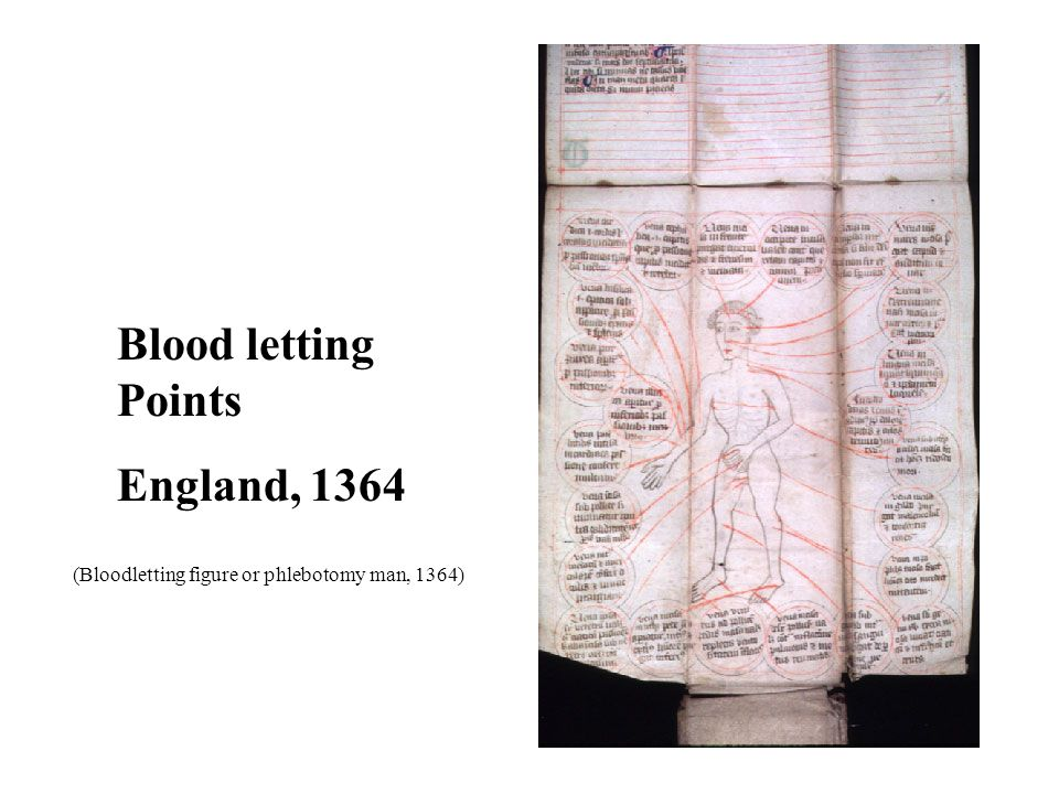 Blood letting Points England, 1364