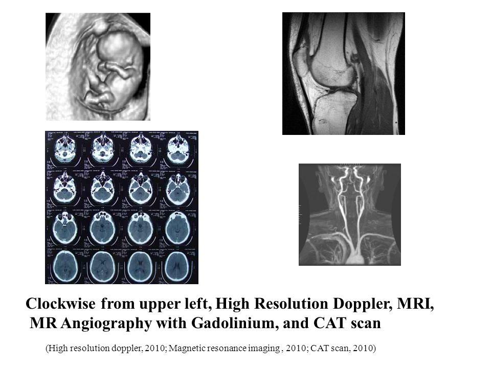 Clockwise from upper left, High Resolution Doppler, MRI,