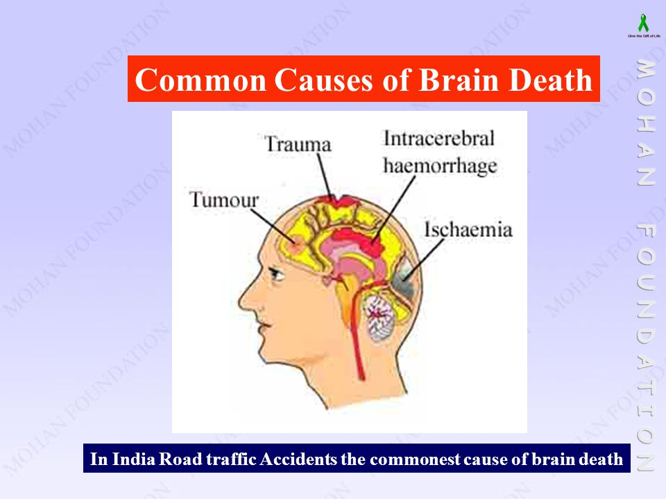 In India Road traffic Accidents the commonest cause of brain death