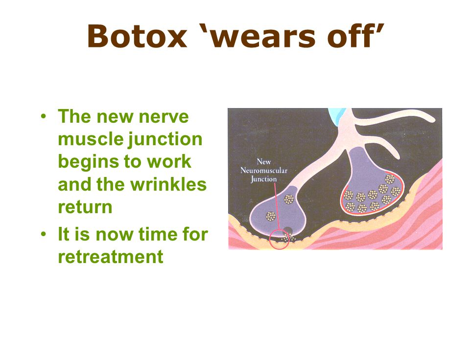 Botox 'wears off' The new nerve muscle junction begins to work and the wrinkles return.