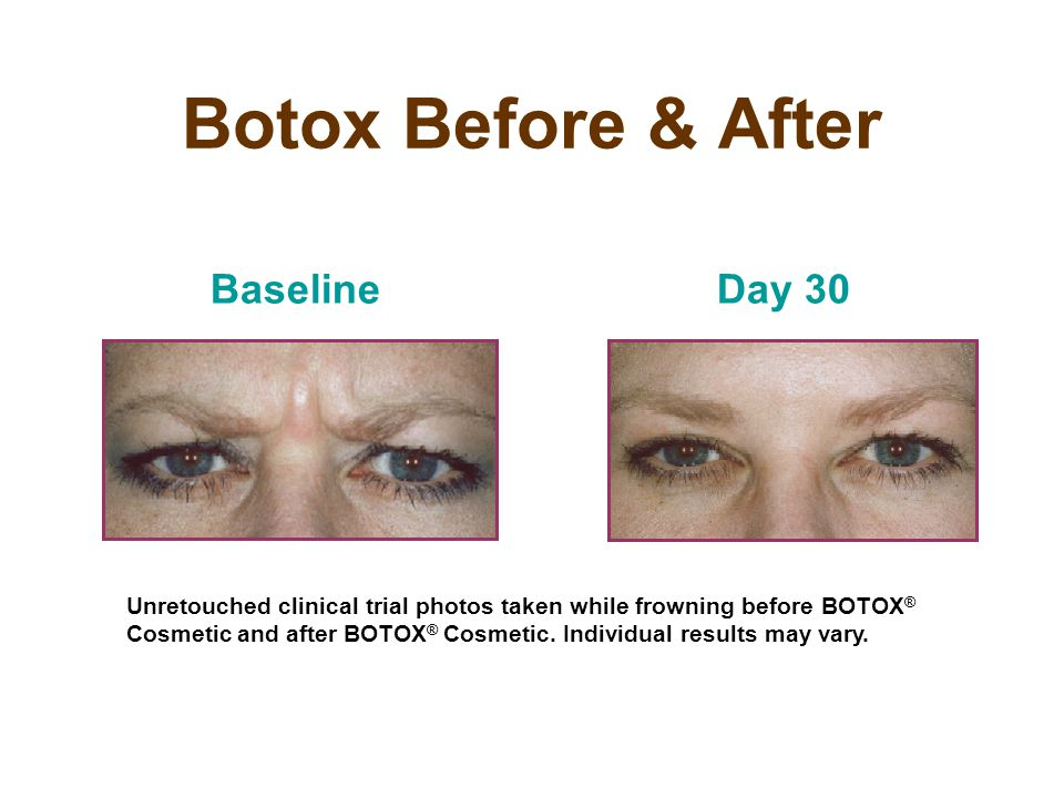 Botox Before & After Baseline Day 30