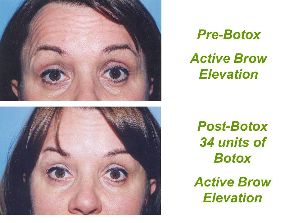 Post-Botox 34 units of Botox