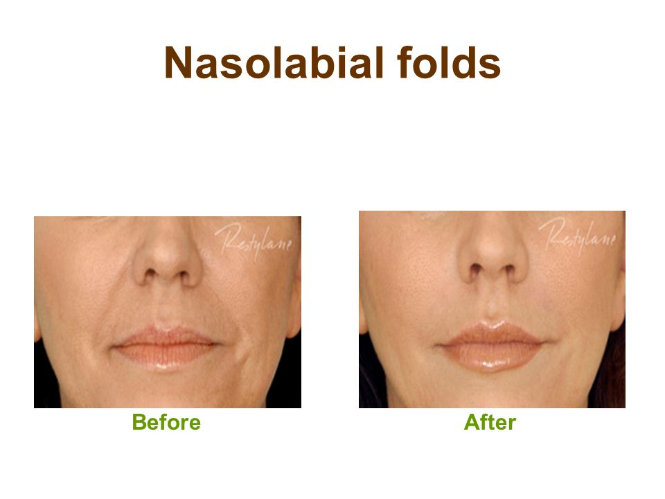 Nasolabial folds Before After