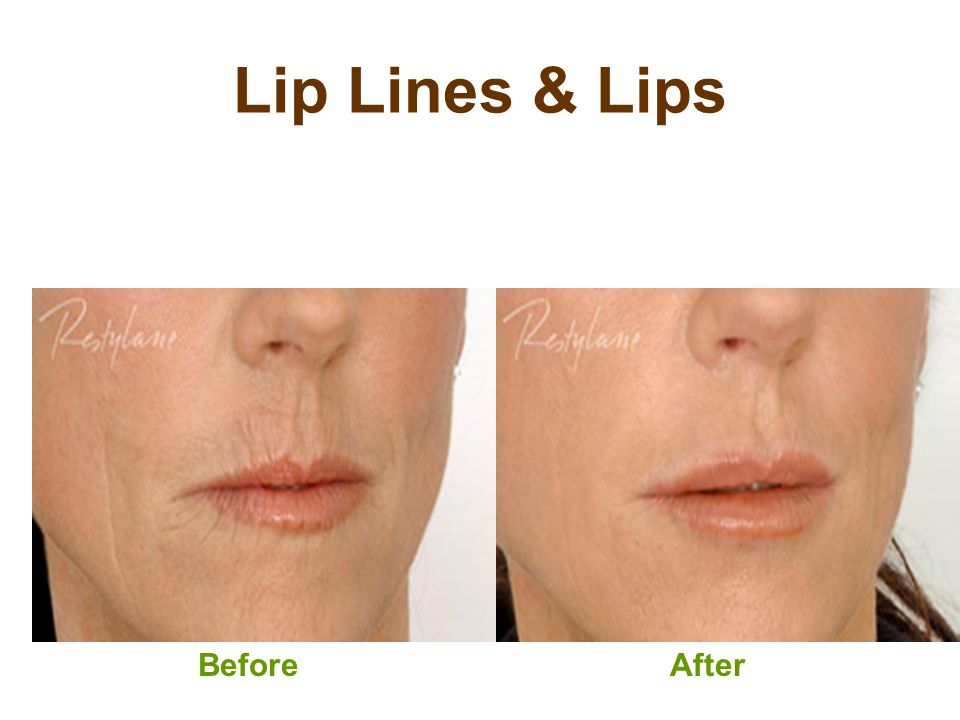Lip Lines & Lips Before After