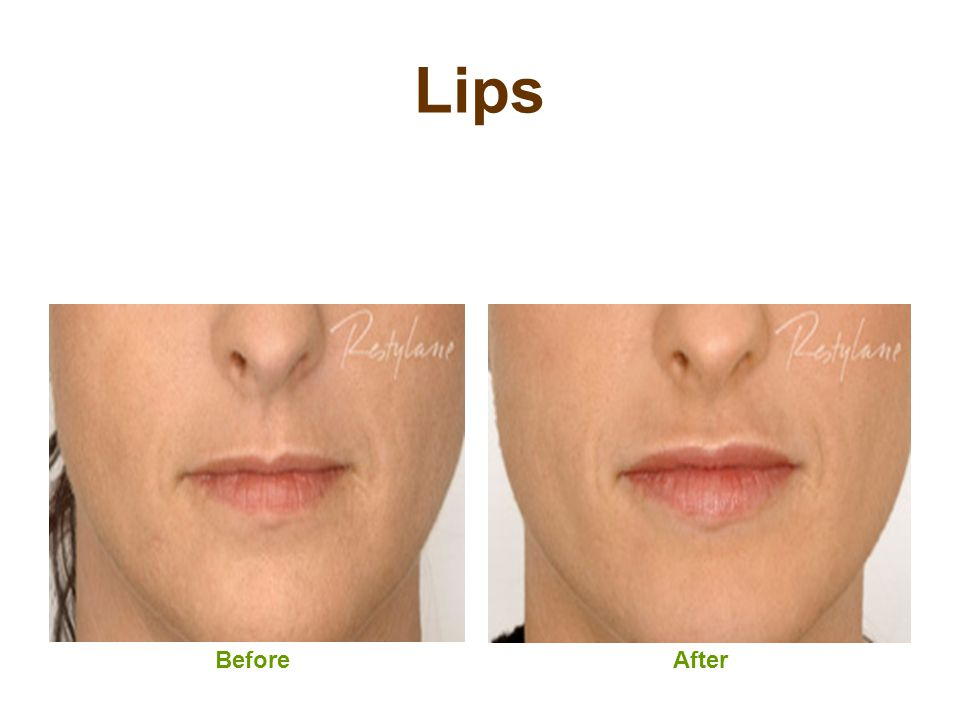 Lips Before After
