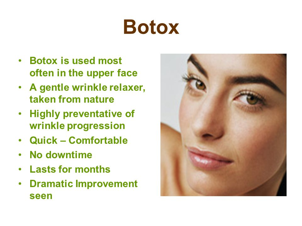 Botox Botox is used most often in the upper face