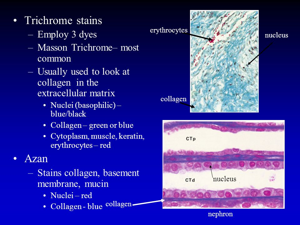 Trichrome stains Azan Employ 3 dyes Masson Trichrome– most common