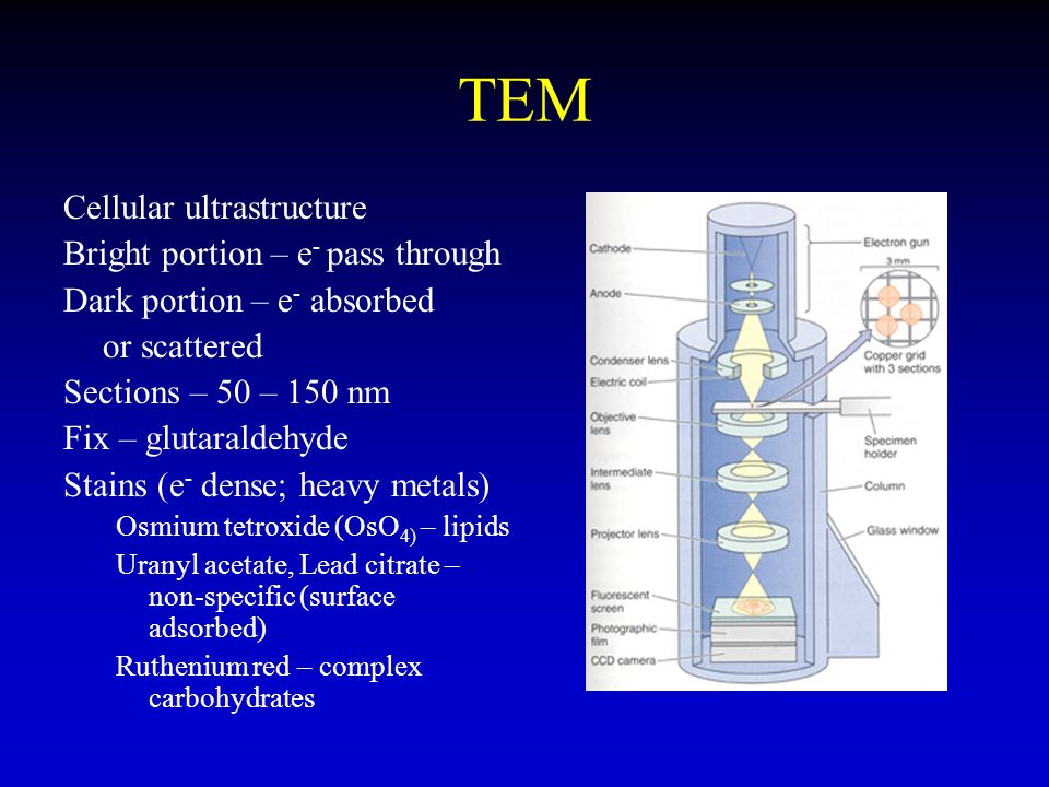 TEM Cellular ultrastructure Bright portion – e- pass through