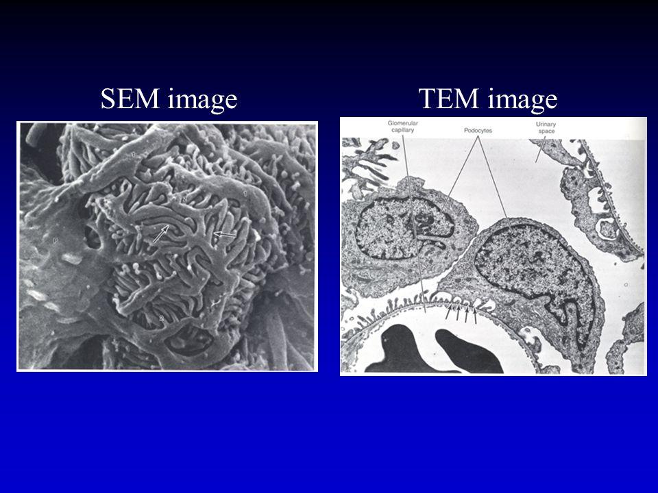 SEM image TEM image.