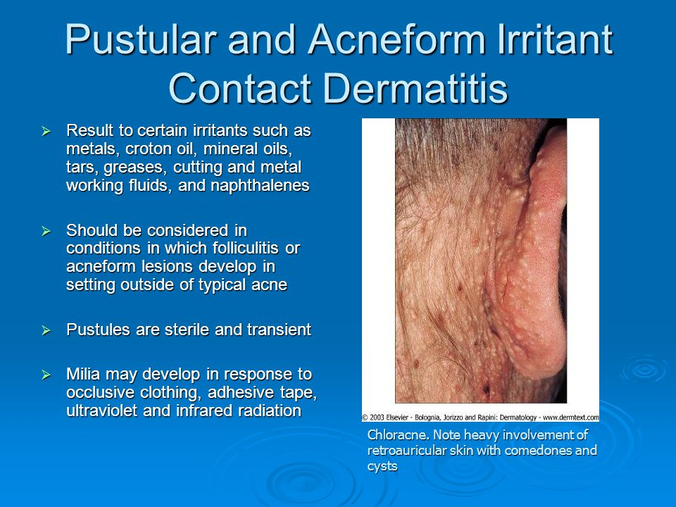 Pustular and Acneform Irritant Contact Dermatitis