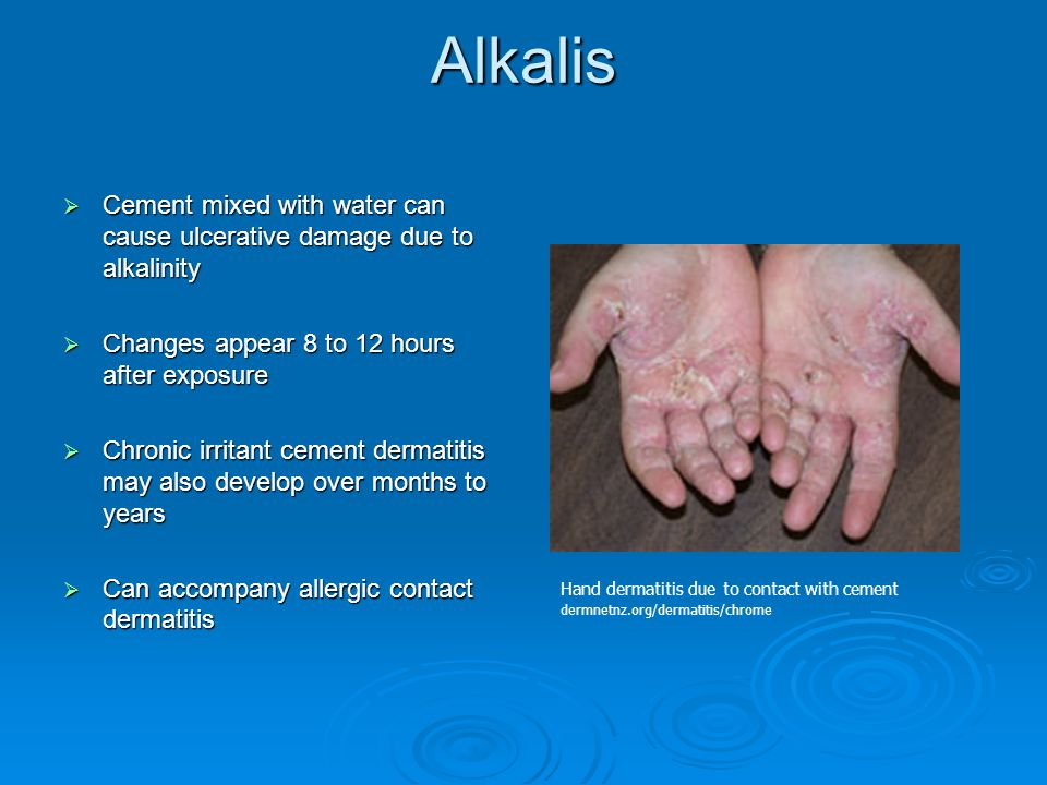 Alkalis Cement mixed with water can cause ulcerative damage due to alkalinity. Changes appear 8 to 12 hours after exposure.
