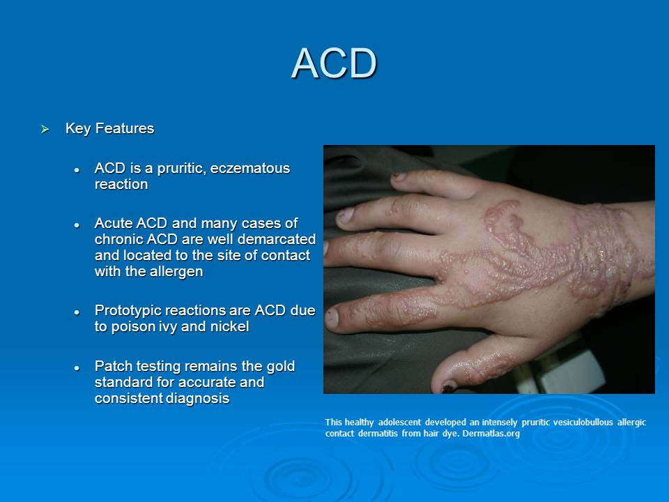 ACD Key Features ACD is a pruritic, eczematous reaction