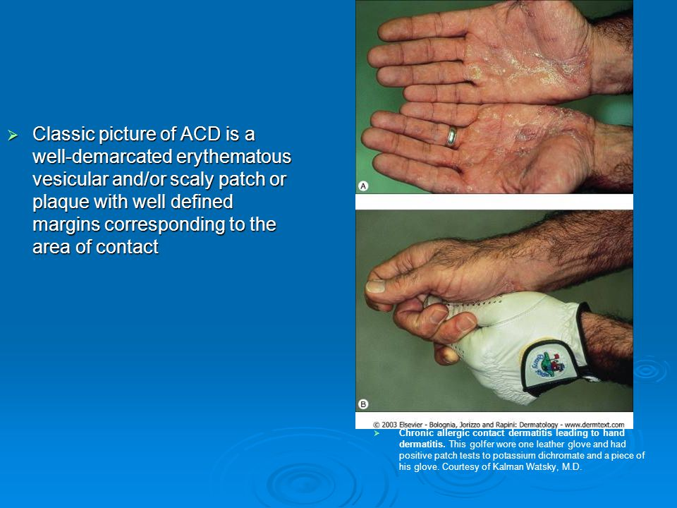 Classic picture of ACD is a well-demarcated erythematous vesicular and/or scaly patch or plaque with well defined margins corresponding to the area of contact