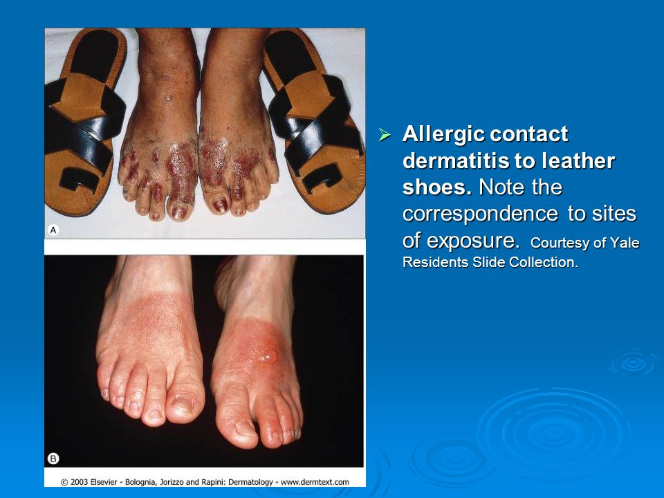 Allergic contact dermatitis to leather shoes
