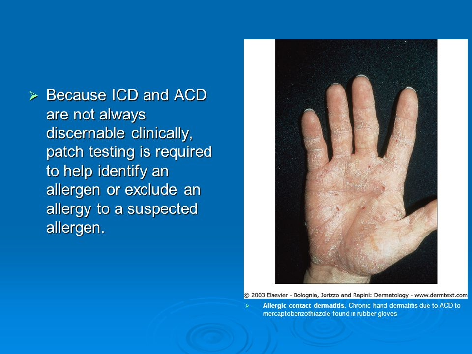 Because ICD and ACD are not always discernable clinically, patch testing is required to help identify an allergen or exclude an allergy to a suspected allergen.