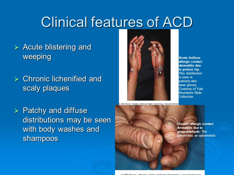 Clinical features of ACD