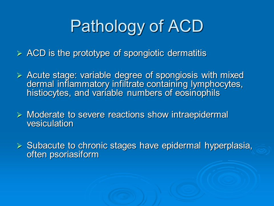 Pathology of ACD ACD is the prototype of spongiotic dermatitis