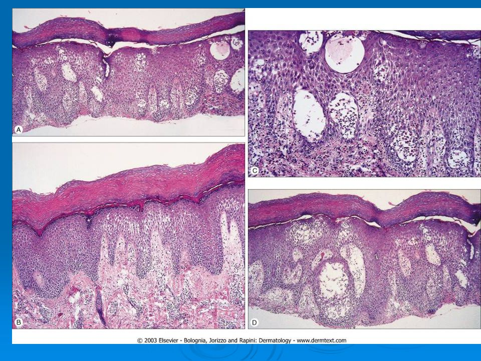 Irregular psoriasiform epidermal hyperplasia with slight spongiosis