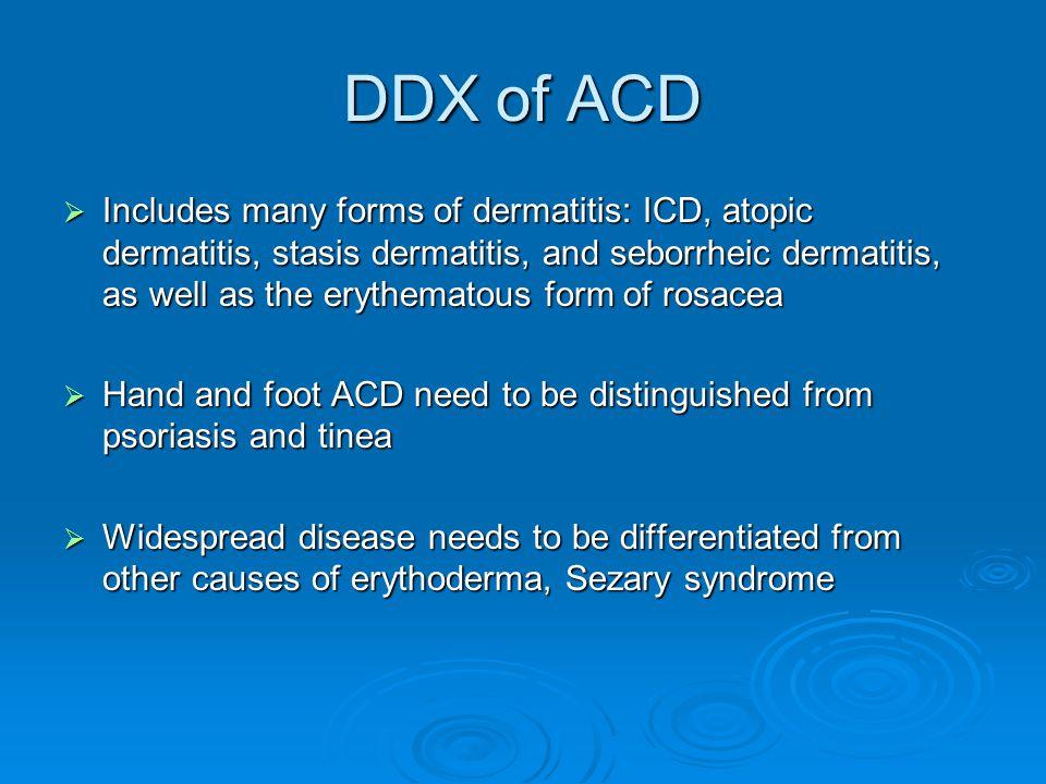 DDX of ACD