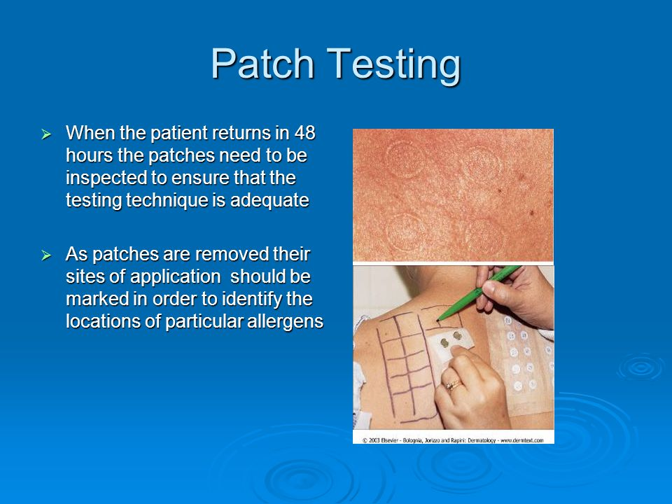 Patch Testing When the patient returns in 48 hours the patches need to be inspected to ensure that the testing technique is adequate.