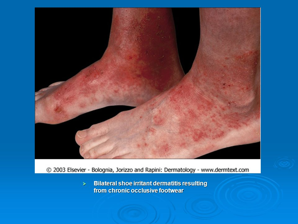 Bilateral shoe irritant dermatitis resulting from chronic occlusive footwear