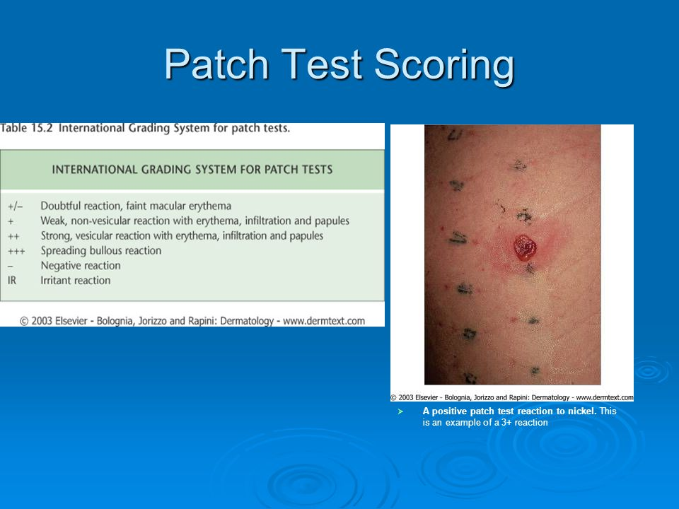 Patch Test Scoring A positive patch test reaction to nickel. This is an example of a 3+ reaction