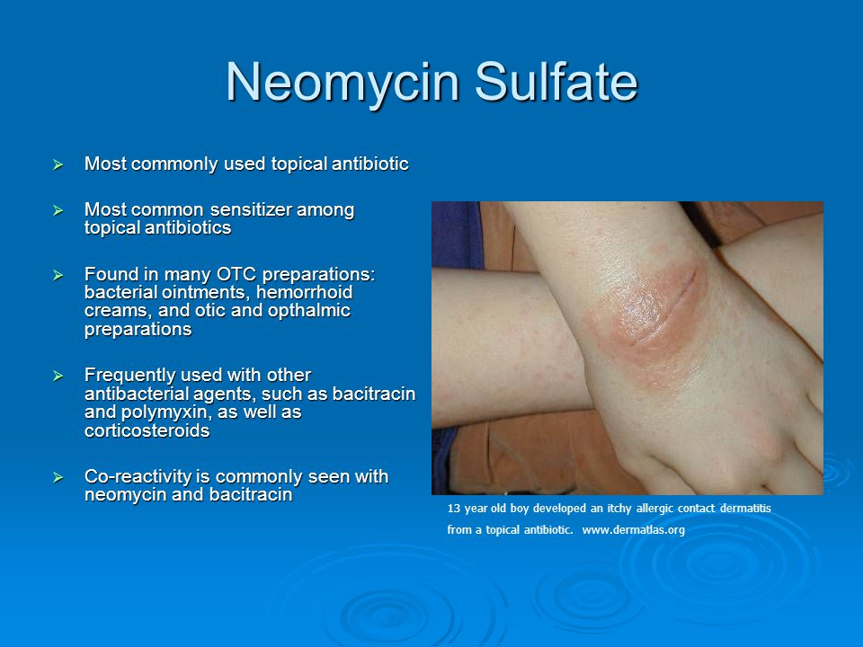 Neomycin Sulfate Most commonly used topical antibiotic
