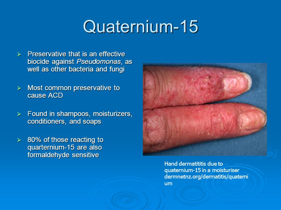 Quaternium-15 Preservative that is an effective biocide against Pseudomonas, as well as other bacteria and fungi.