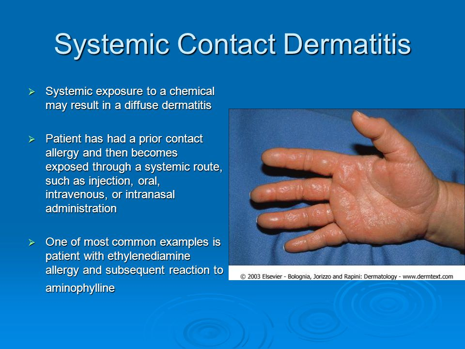 Systemic Contact Dermatitis