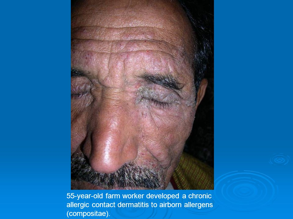 55-year-old farm worker developed a chronic allergic contact dermatitis to airborn allergens (compositae).