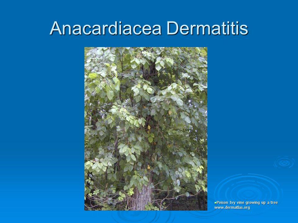 Anacardiacea Dermatitis