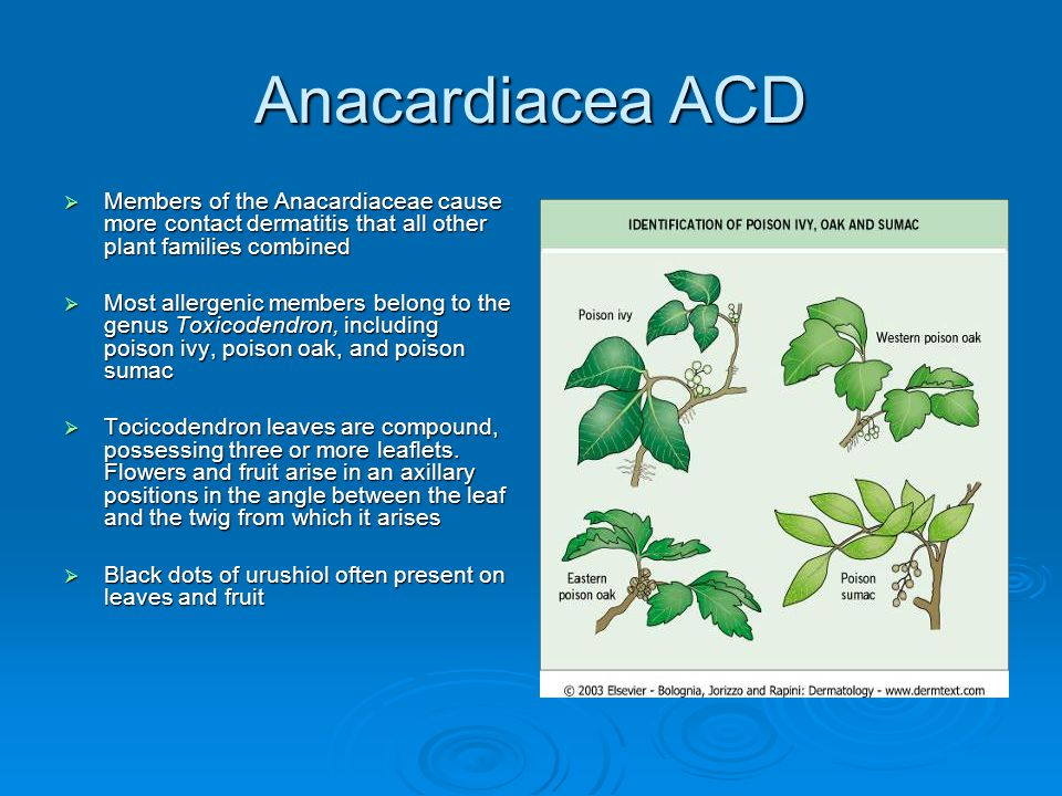 Anacardiacea ACD Members of the Anacardiaceae cause more contact dermatitis that all other plant families combined.