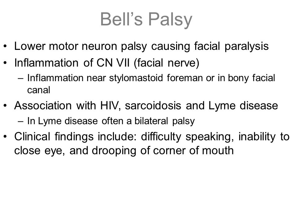 Bell's Palsy Lower motor neuron palsy causing facial paralysis