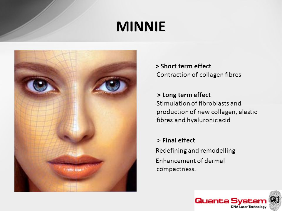 MINNIE > Short term effect Contraction of collagen fibres