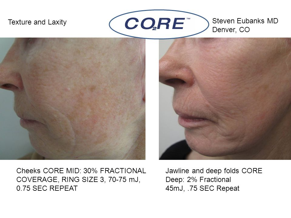 Texture and Laxity Steven Eubanks MD. Denver, CO. Cheeks CORE MID: 30% FRACTIONAL COVERAGE, RING SIZE 3, 70-75 mJ, 0.75 SEC REPEAT.