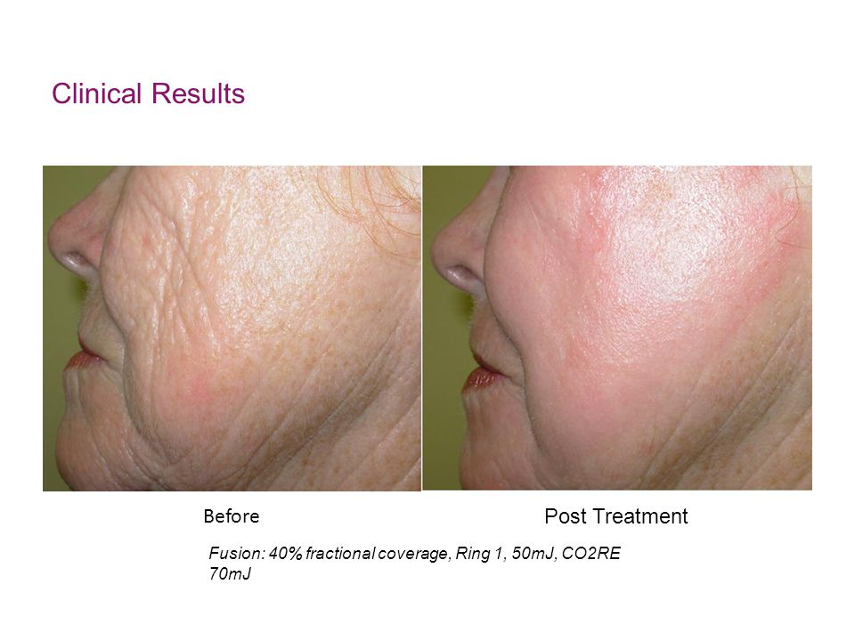 Clinical Results Before Post Treatment