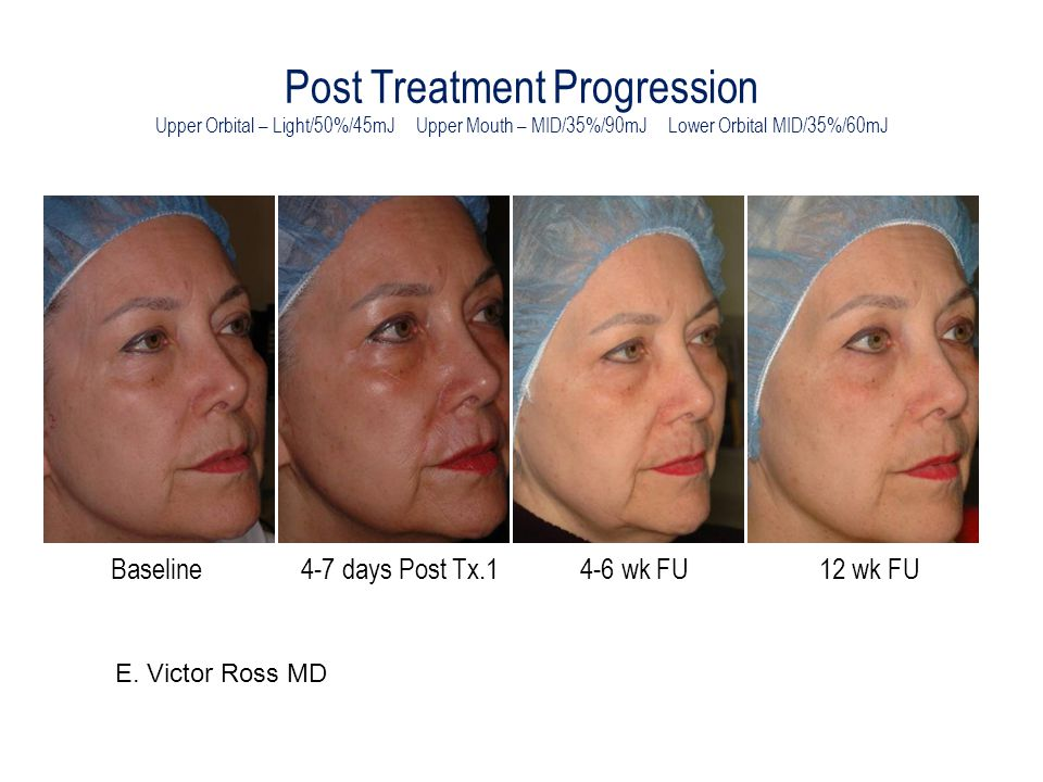 Post Treatment Progression Upper Orbital – Light/50%/45mJ Upper Mouth – MID/35%/90mJ Lower Orbital MID/35%/60mJ