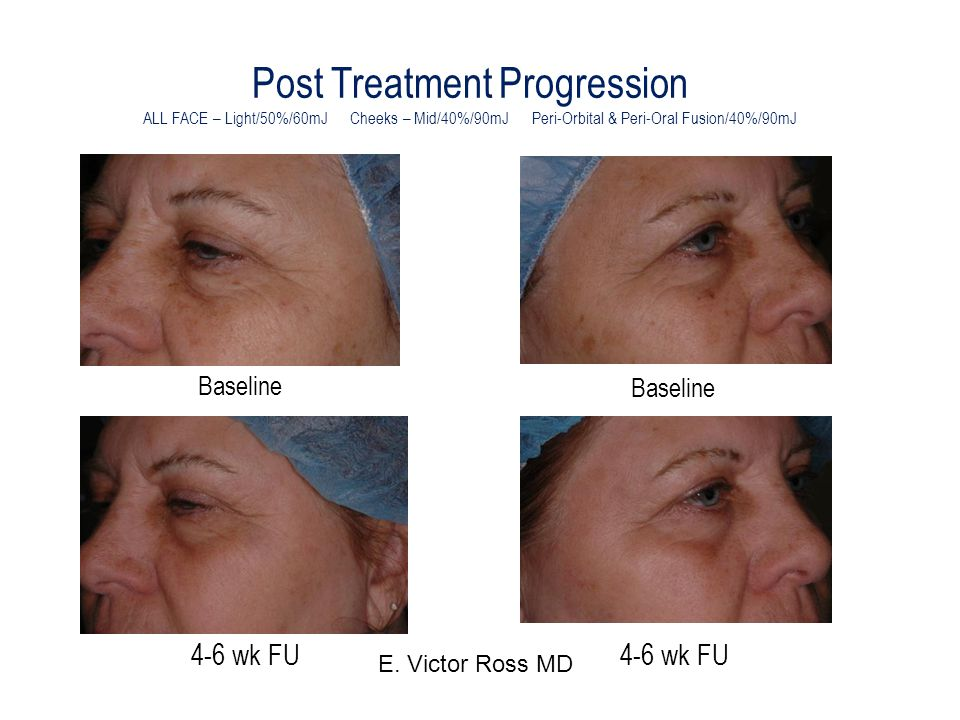Post Treatment Progression ALL FACE – Light/50%/60mJ Cheeks – Mid/40%/90mJ Peri-Orbital & Peri-Oral Fusion/40%/90mJ