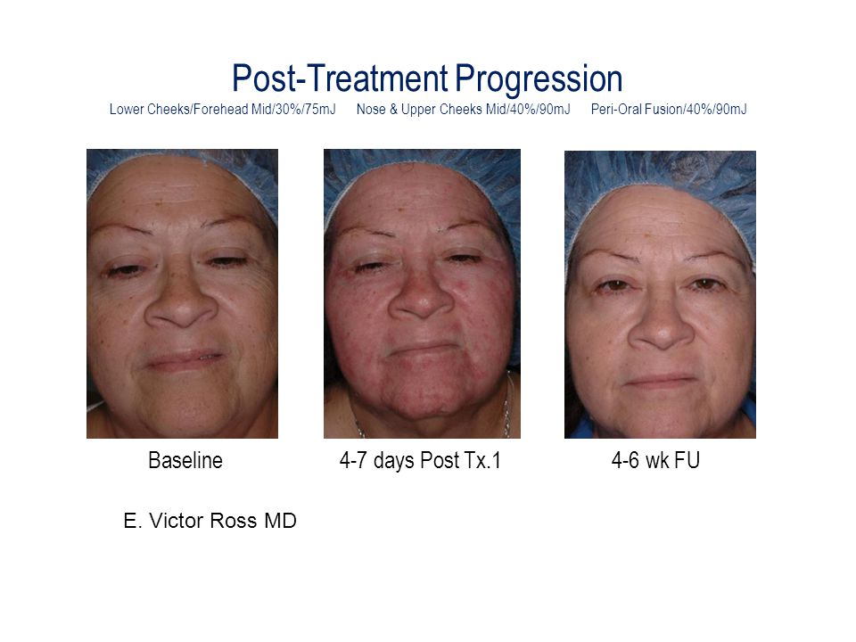 Post-Treatment Progression Lower Cheeks/Forehead Mid/30%/75mJ Nose & Upper Cheeks Mid/40%/90mJ Peri-Oral Fusion/40%/90mJ