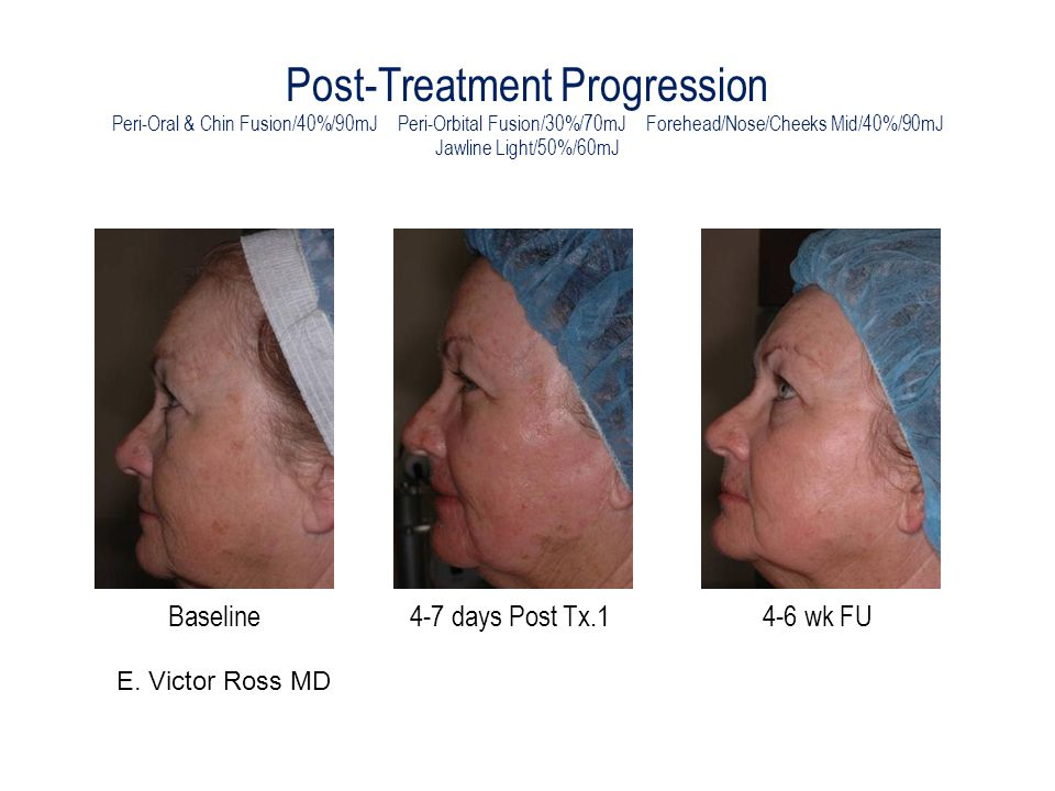Post-Treatment Progression Peri-Oral & Chin Fusion/40%/90mJ Peri-Orbital Fusion/30%/70mJ Forehead/Nose/Cheeks Mid/40%/90mJ Jawline Light/50%/60mJ