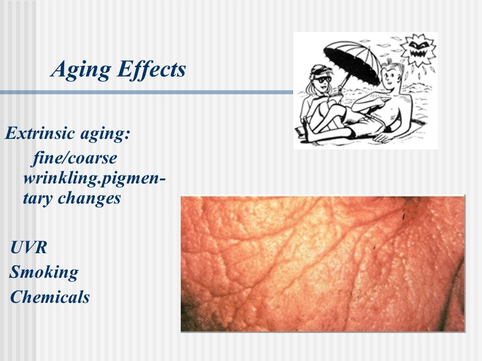 Aging Effects Extrinsic aging: