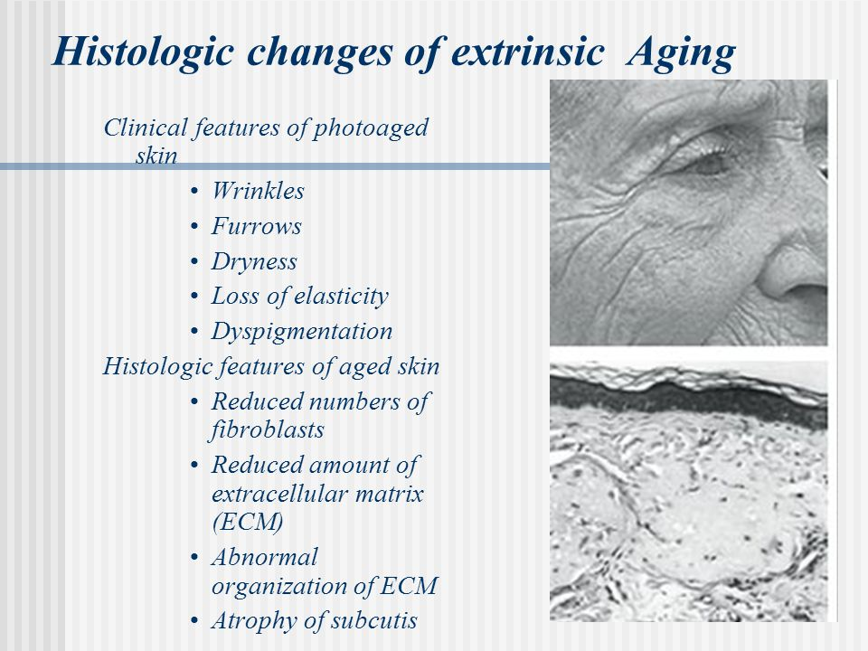 Histologic changes of extrinsic Aging